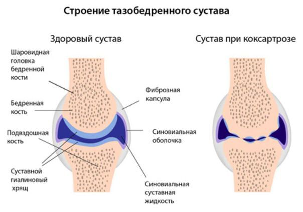 Лечение народными средствами артроза тазобедренного