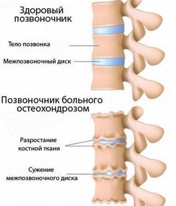 Инъекции при поясничном остеохондрозе