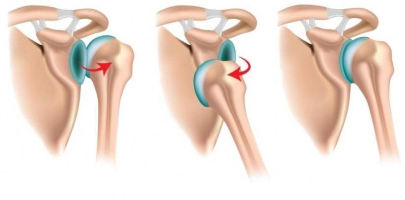 Смещение костей относительно друг друга в области суставов это бифлекс-лечение суставов