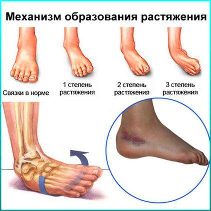 Если порвал связки на ноге как можно лечить