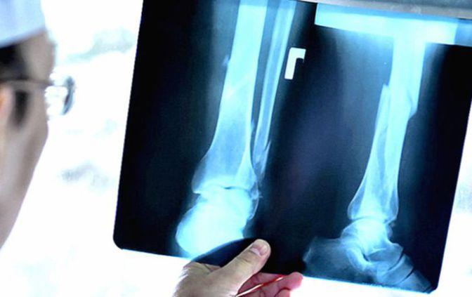 Где можно сделать рентген коленного сустава в екатеринбурге артроз коленного сустава отеки