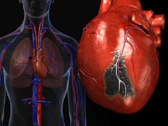 инфаркт миокарда у подростков рекомендуется
