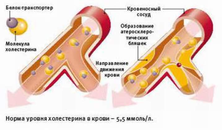 Транспортерами холестерина транспортер рисунки